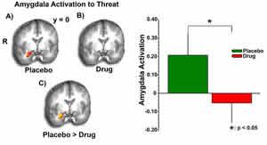 amygdala-activation-to-threat.jpg